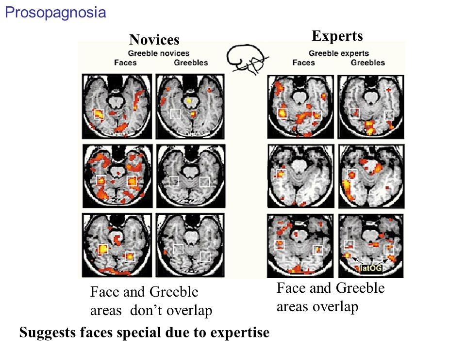 Face and Greeble areas overlap Face and Greeble areas dont overlap Novices Experts Prosopagnosia Suggests faces special due to expertise