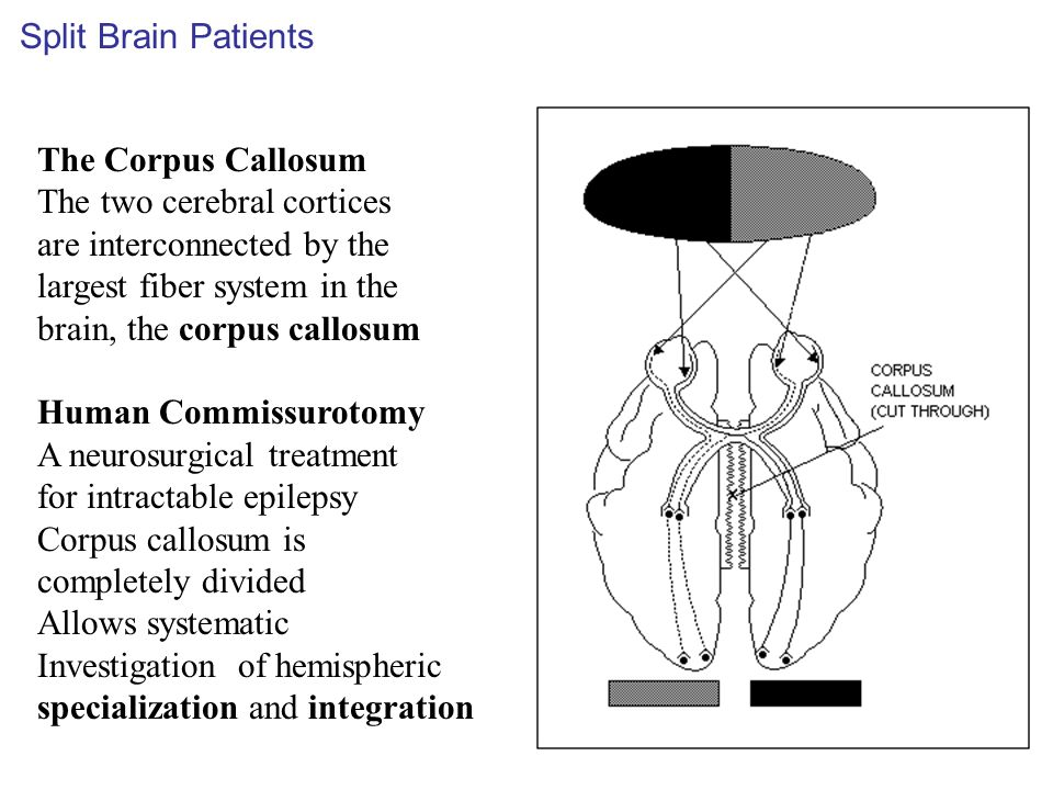 The Corpus Callosum The two cerebral cortices are interconnected by the largest fiber system in the brain, the corpus callosum Human Commissurotomy A neurosurgical treatment for intractable epilepsy Corpus callosum is completely divided Allows systematic Investigation of hemispheric specialization and integration Split Brain Patients