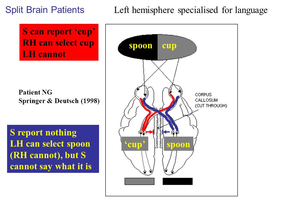 cup S can report cup RH can select cup LH cannot spoon S report nothing LH can select spoon (RH cannot), but S cannot say what it is Patient NG Springer & Deutsch (1998) Split Brain Patients Left hemisphere specialised for language