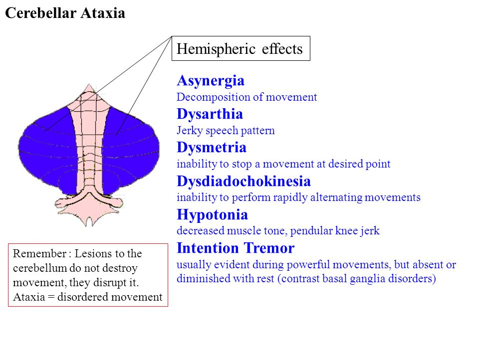 Cerebellar Ataxia Hemispheric effects Asynergia Decomposition of movement Dysarthia Jerky speech pattern Dysmetria inability to stop a movement at des