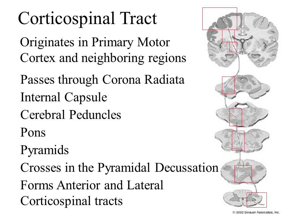 Corticospinal Tract Originates in Primary Motor Cortex and neighboring regions Passes through Corona Radiata Internal Capsule Cerebral Peduncles Pons
