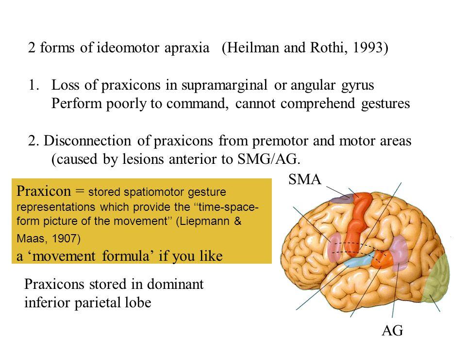 2 forms of ideomotor apraxia (Heilman and Rothi, 1993) 1.Loss of praxicons in supramarginal or angular gyrus Perform poorly to command, cannot compreh