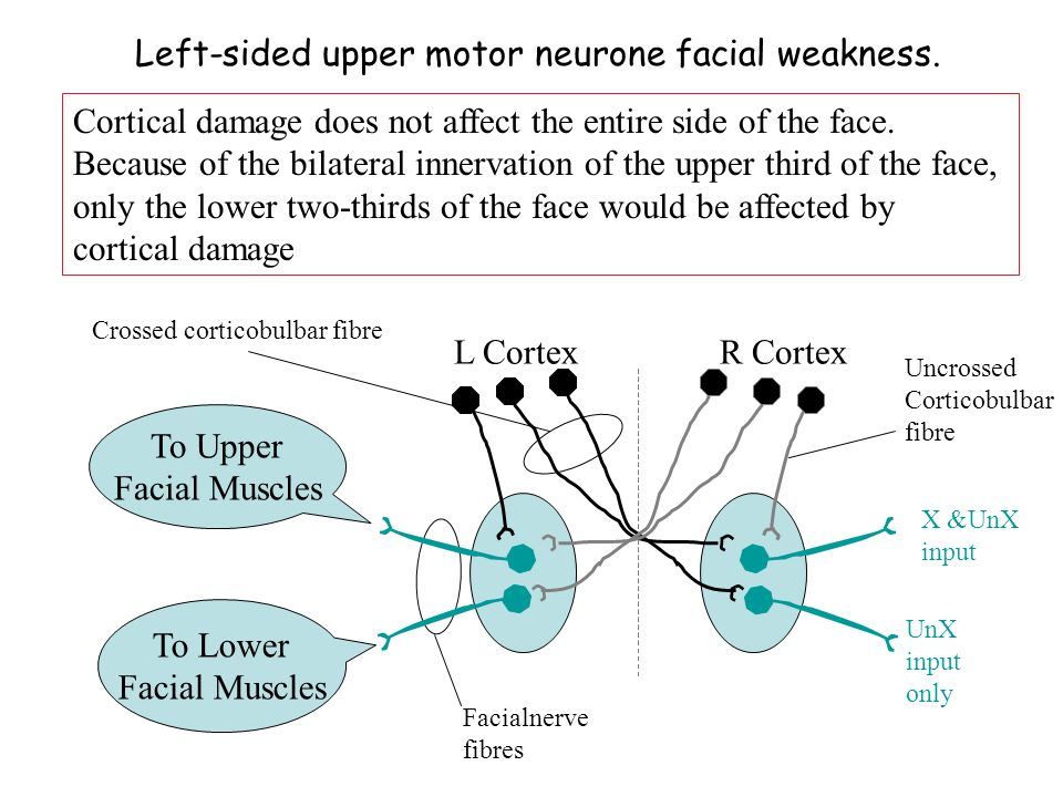 Ideomotor apraxia Impairment in the performance of skilled pantomime movements on verbal command or in imitation most commonly caused by parietal damage in the dominant hemisphere (LH).