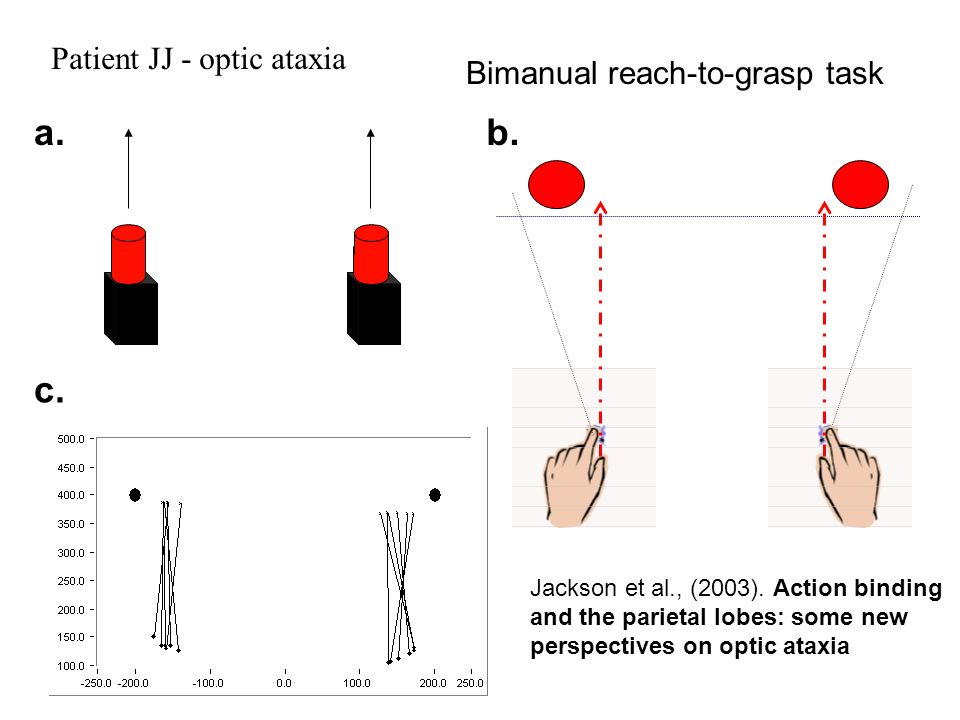 Bimanual reach-to-grasp task a.b. c. Patient JJ - optic ataxia Jackson et al., (2003). Action binding and the parietal lobes: some new perspectives on