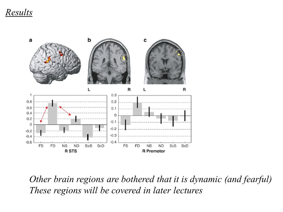 Other brain regions are bothered that it is dynamic (and fearful) These regions will be covered in later lectures Results