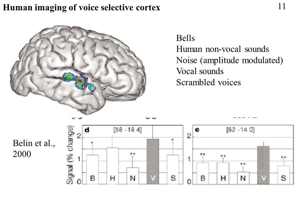 Human imaging of voice selective cortex Belin et al., 2000 11 Bells Human non-vocal sounds Noise (amplitude modulated) Vocal sounds Scrambled voices