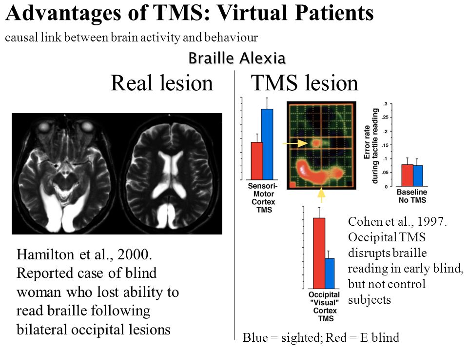 Real lesion Blue = sighted; Red = E blind Cohen et al., 1997. Occipital TMS disrupts braille reading in early blind, but not control subjects Hamilton