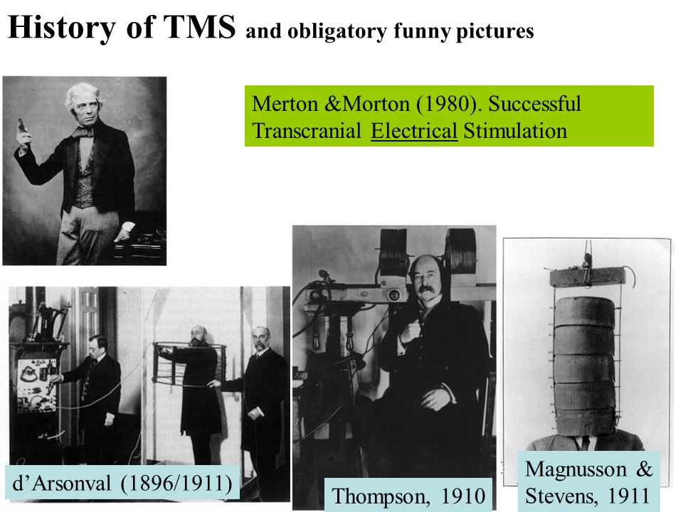 dArsonval (1896/1911) Magnusson & Stevens, 1911 Thompson, 1910 History of TMS and obligatory funny pictures Merton &Morton (1980). Successful Transcra