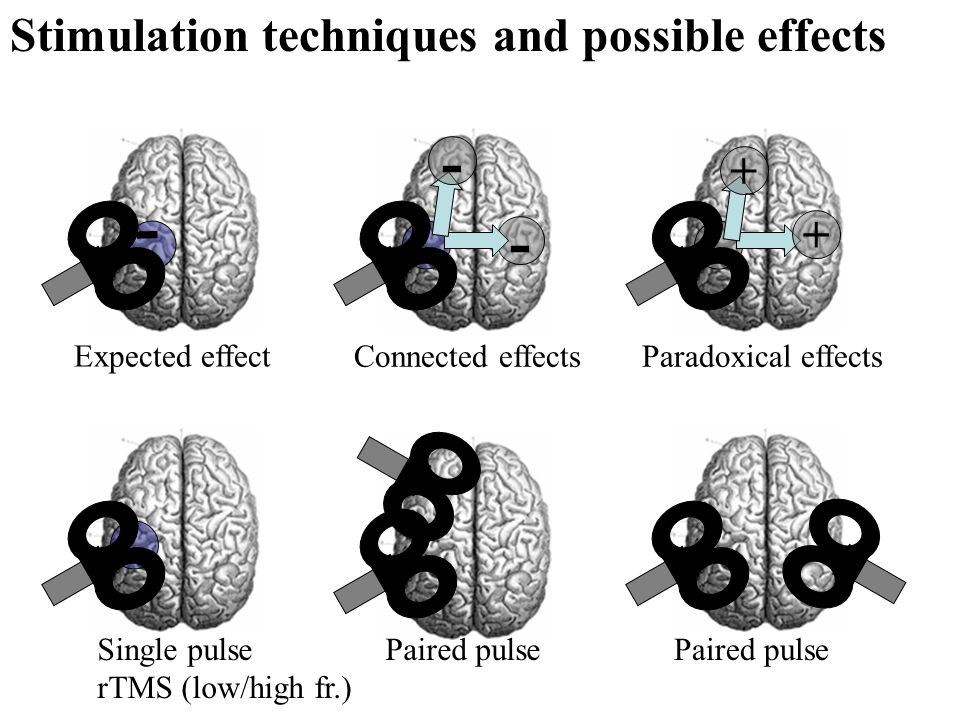 - - - + + Stimulation techniques and possible effects Single pulse rTMS (low/high fr.) Paired pulse Paradoxical effectsConnected effects Expected effe
