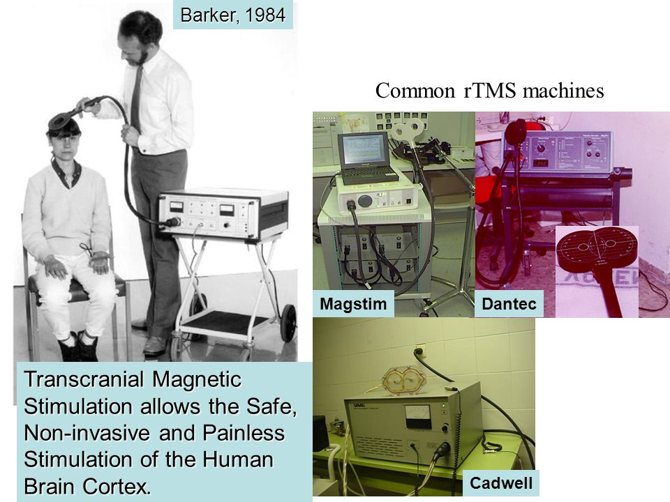 Barker, 1984 Transcranial Magnetic Stimulation allows the Safe, Non-invasive and Painless Stimulation of the Human Brain Cortex. Cadwell DantecMagstim