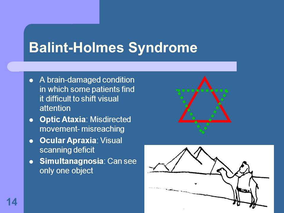 14 Balint-Holmes Syndrome A brain-damaged condition in which some patients find it difficult to shift visual attention Optic Ataxia: Misdirected movem