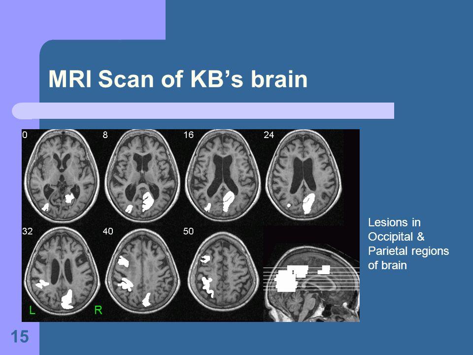 15 MRI Scan of KBs brain L R Lesions in Occipital & Parietal regions of brain