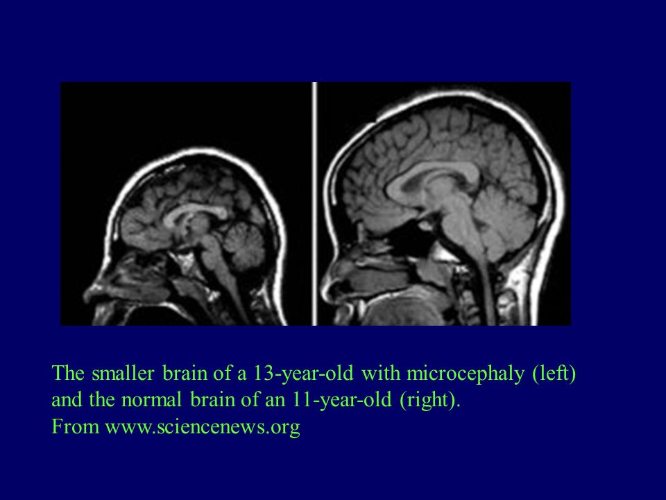 The smaller brain of a 13-year-old with microcephaly (left) and the normal brain of an 11-year-old (right). From www.sciencenews.org