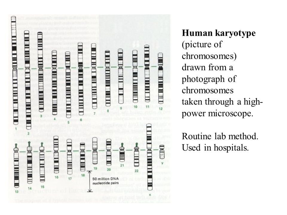 Human karyotype (picture of chromosomes) drawn from a photograph of chromosomes taken through a high- power microscope.