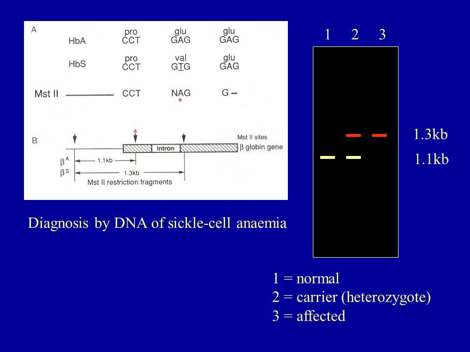 Diagnosis by DNA of sickle-cell anaemia 1 2 3 1.3kb 1.1kb 1 = normal 2 = carrier (heterozygote) 3 = affected