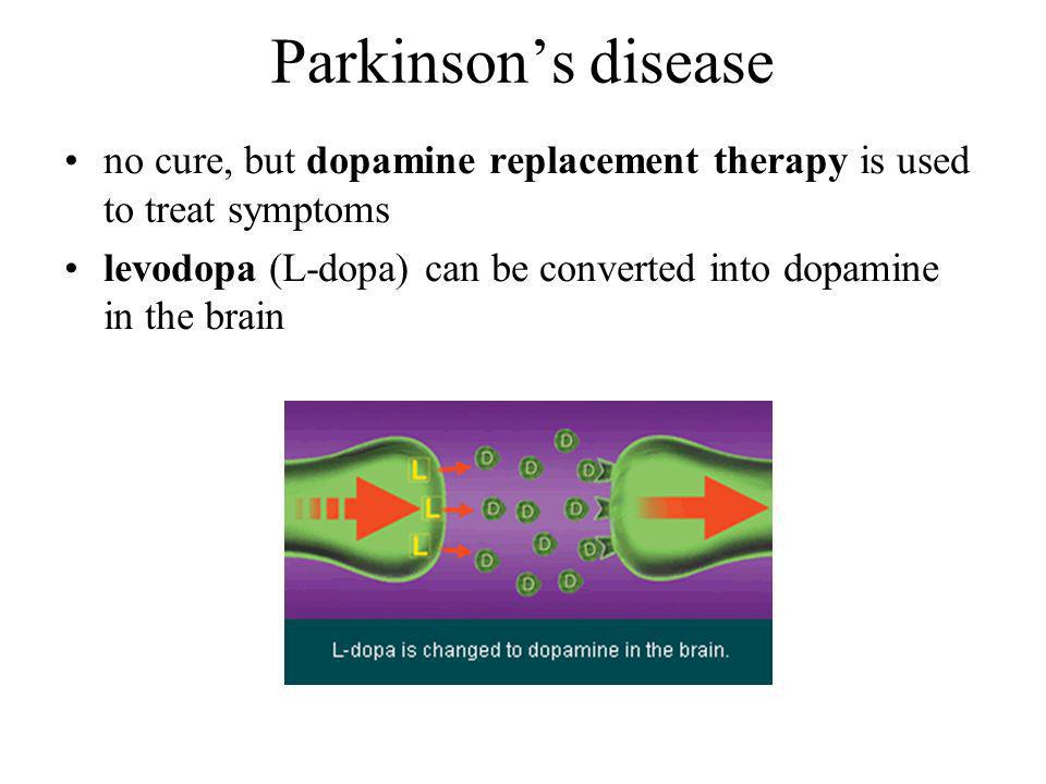 no cure, but dopamine replacement therapy is used to treat symptoms levodopa (L-dopa) can be converted into dopamine in the brain