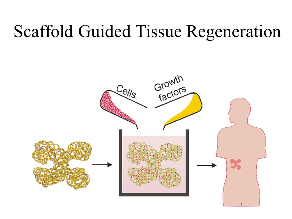 Scaffold Guided Tissue Regeneration