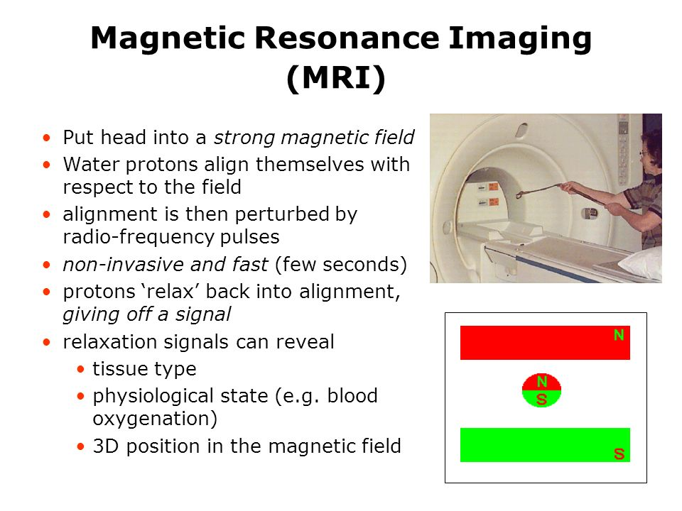 Magnetic Resonance Imaging (MRI) Put head into a strong magnetic field Water protons align themselves with respect to the field alignment is then perturbed by radio-frequency pulses non-invasive and fast (few seconds) protons relax back into alignment, giving off a signal relaxation signals can reveal tissue type physiological state (e.g.