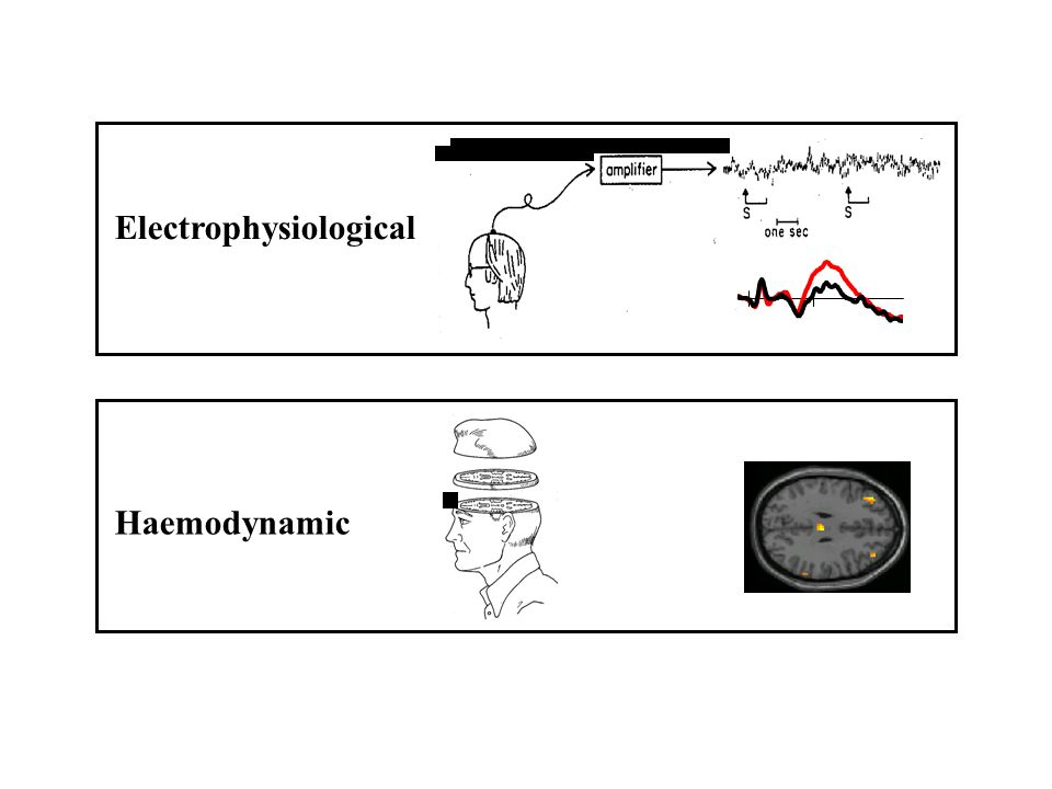 Electrophysiological Haemodynamic