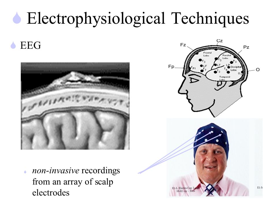 S Electrophysiological Techniques SEEG S non-invasive recordings from an array of scalp electrodes