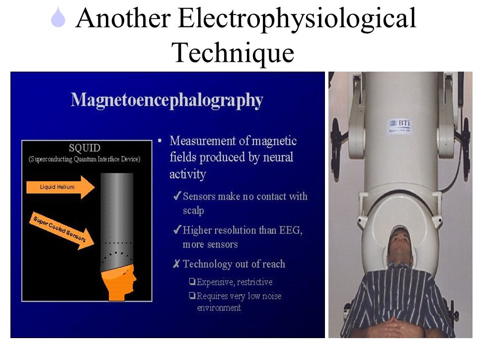 S Another Electrophysiological Technique