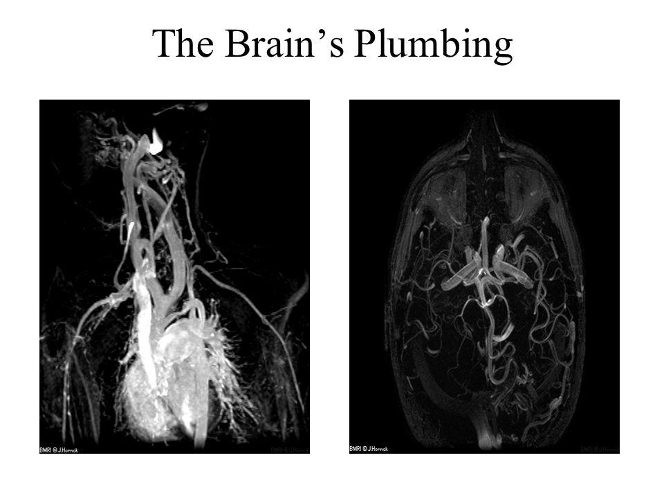 The Brains Plumbing