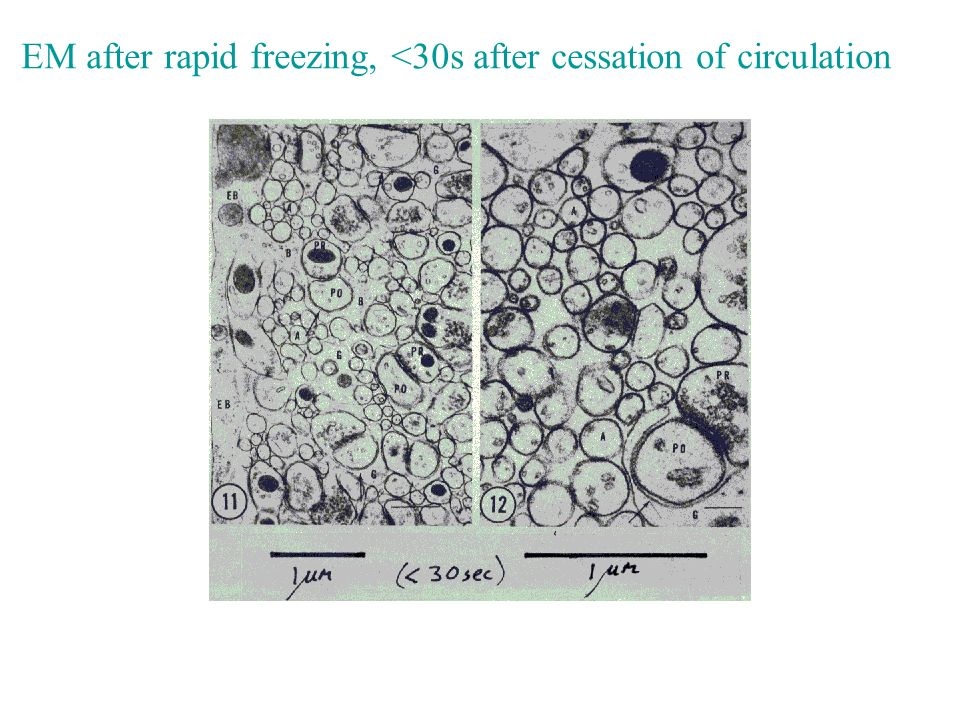EM after rapid freezing, <30s after cessation of circulation