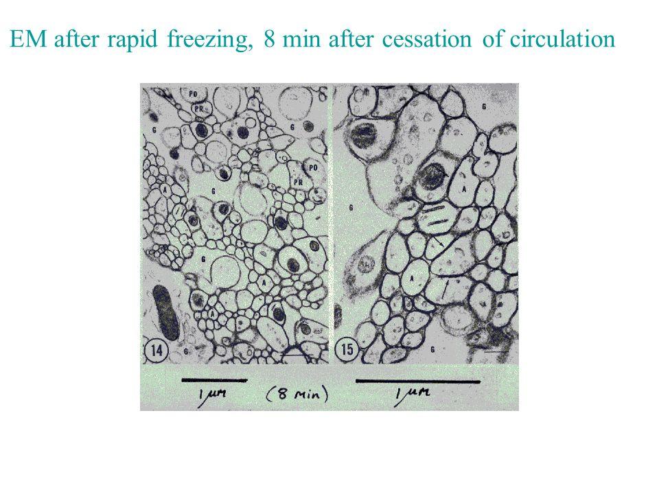 EM after rapid freezing, 8 min after cessation of circulation