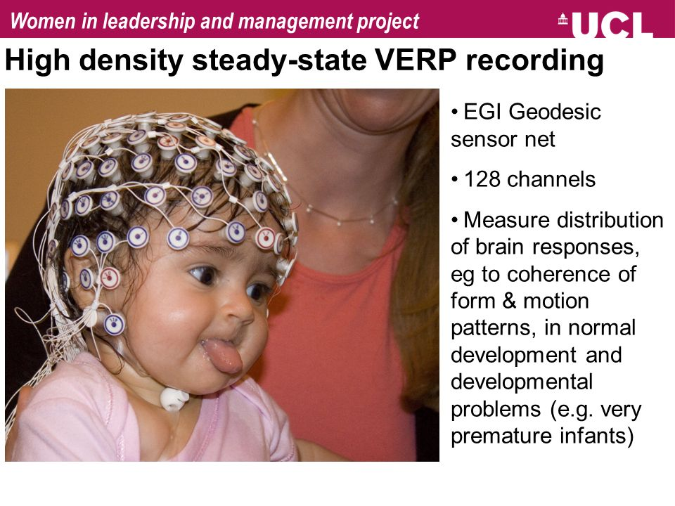 High density steady-state VERP recording EGI Geodesic sensor net 128 channels Measure distribution of brain responses, eg to coherence of form & motion patterns, in normal development and developmental problems (e.g.