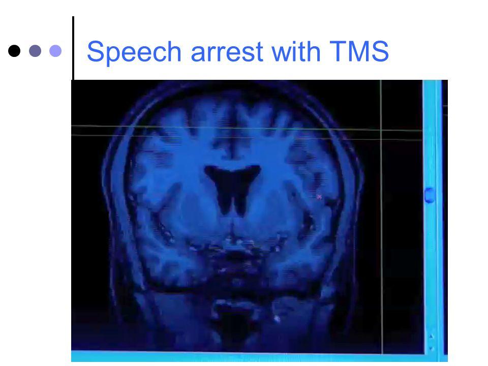 Speech arrest with TMS