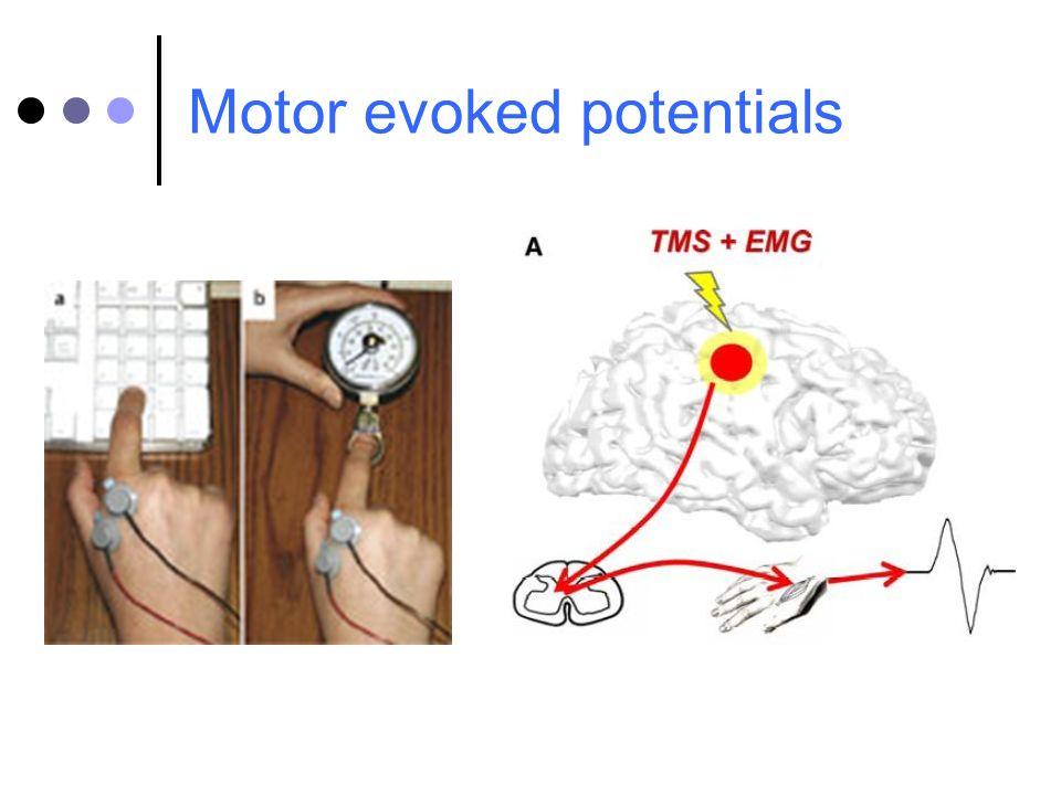 Motor evoked potentials