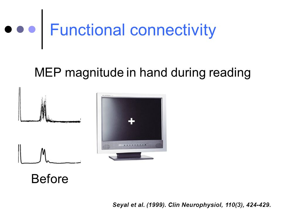 Functional connectivity Seyal et al. (1999). Clin Neurophysiol, 110(3), 424-429. MEP magnitude in hand during reading Before +