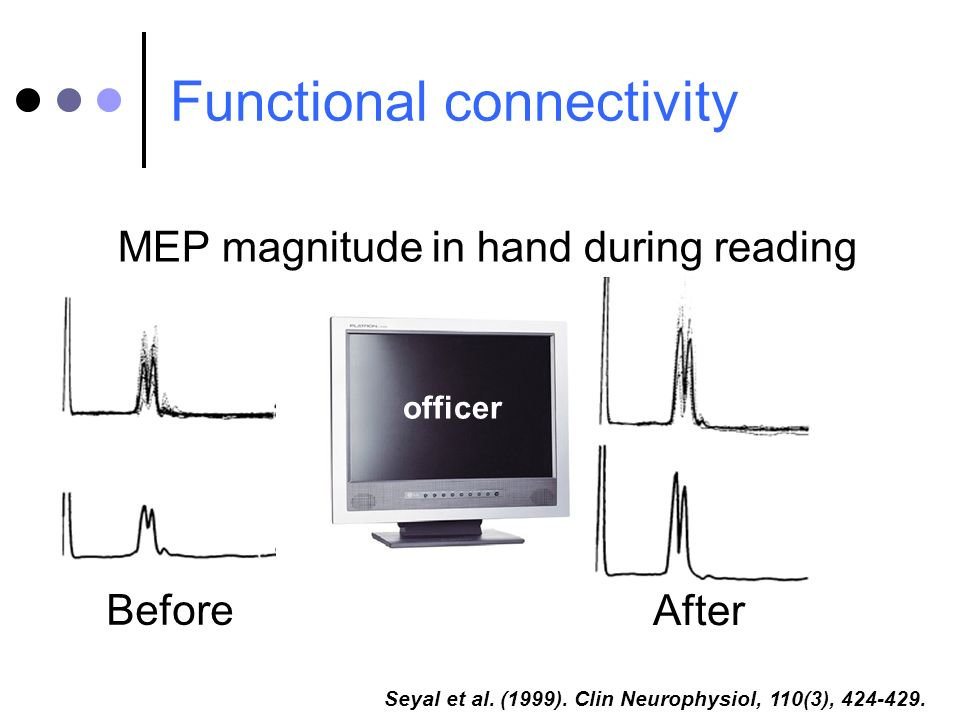 Functional connectivity Seyal et al. (1999). Clin Neurophysiol, 110(3), 424-429. MEP magnitude in hand during reading Before After officer