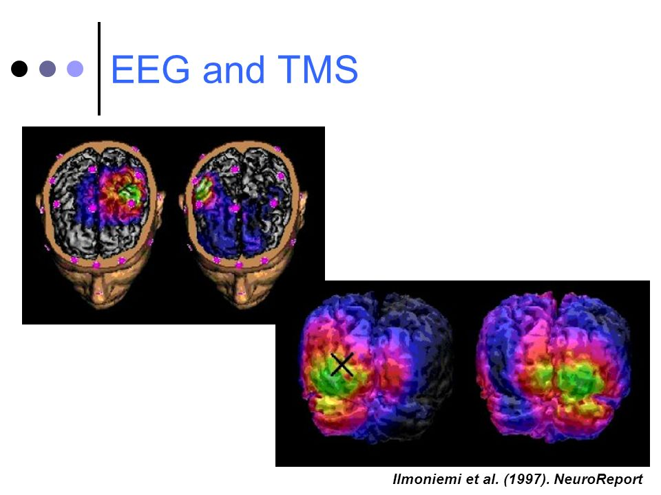 EEG and TMS Ilmoniemi et al. (1997). NeuroReport