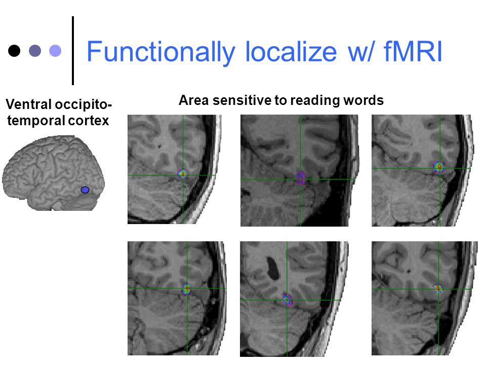 Ventral occipito- temporal cortex Area sensitive to reading words Functionally localize w/ fMRI