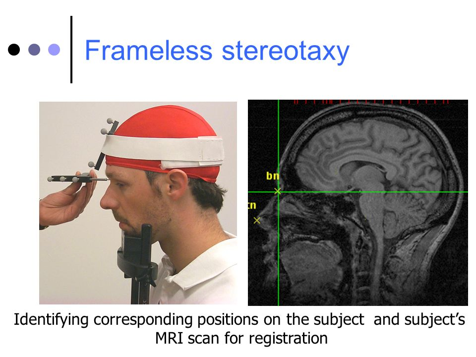 Identifying corresponding positions on the subject and subjects MRI scan for registration Frameless stereotaxy