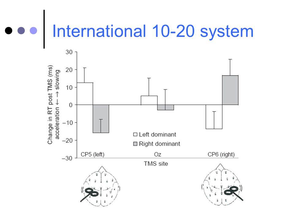 International 10-20 system