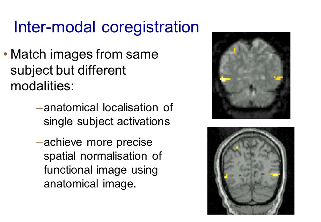 Match images from same subject but different modalities: –anatomical localisation of single subject activations –achieve more precise spatial normalis