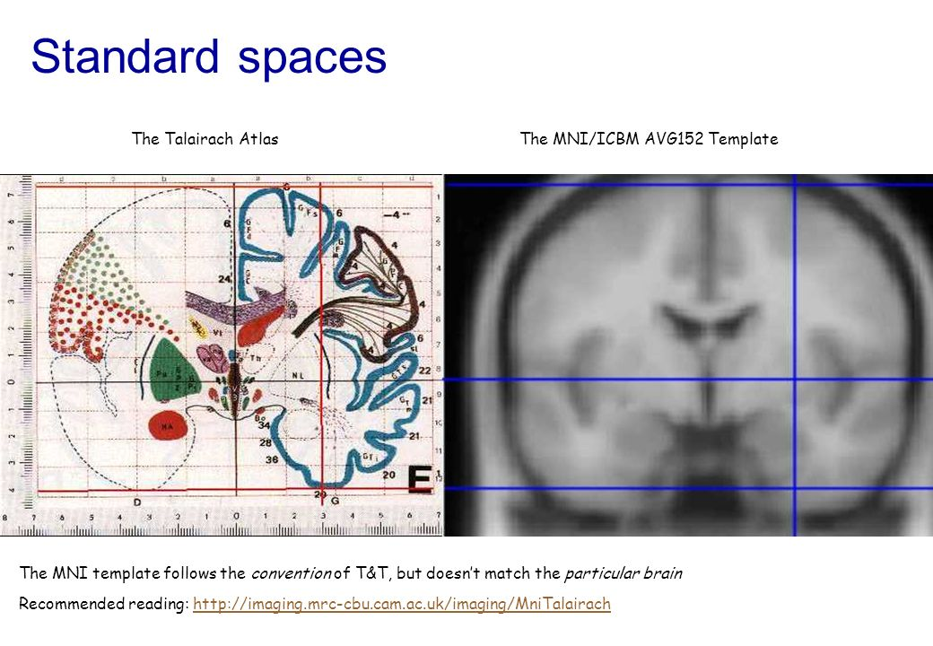 Standard spaces The MNI template follows the convention of T&T, but doesnt match the particular brain Recommended reading: http://imaging.mrc-cbu.cam.