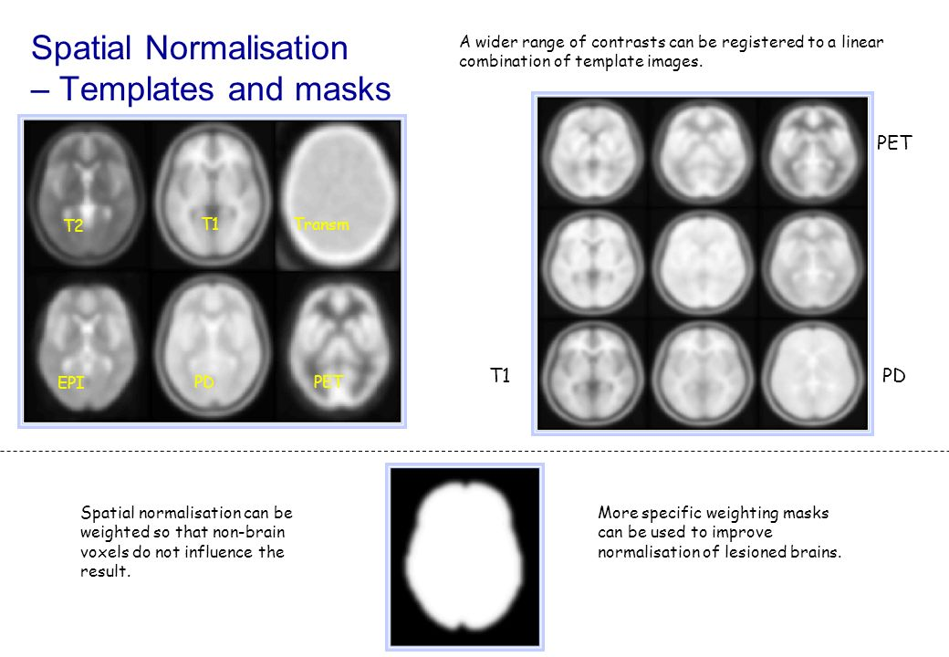 EPI T2 T1Transm PDPET Spatial normalisation can be weighted so that non-brain voxels do not influence the result. A wider range of contrasts can be re