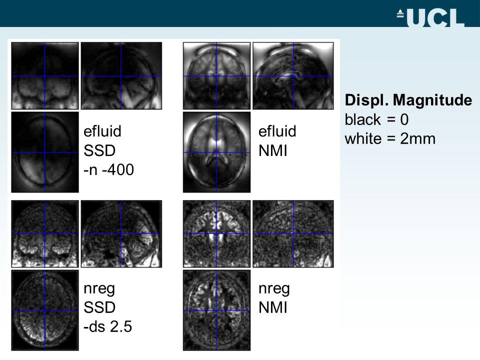 Displ. Magnitude black = 0 white = 2mm efluid SSD -n -400 nreg SSD -ds 2.5 efluid NMI nreg NMI