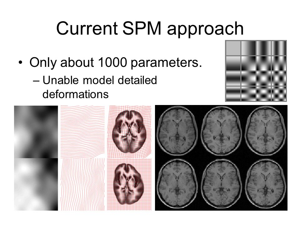 Current SPM approach Only about 1000 parameters. –Unable model detailed deformations
