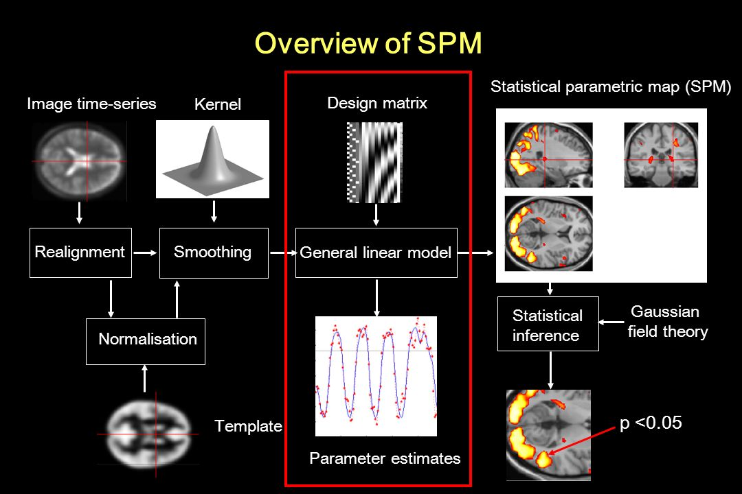 Overview of SPM RealignmentSmoothing Normalisation General linear model Statistical parametric map (SPM) Image time-series Parameter estimates Design