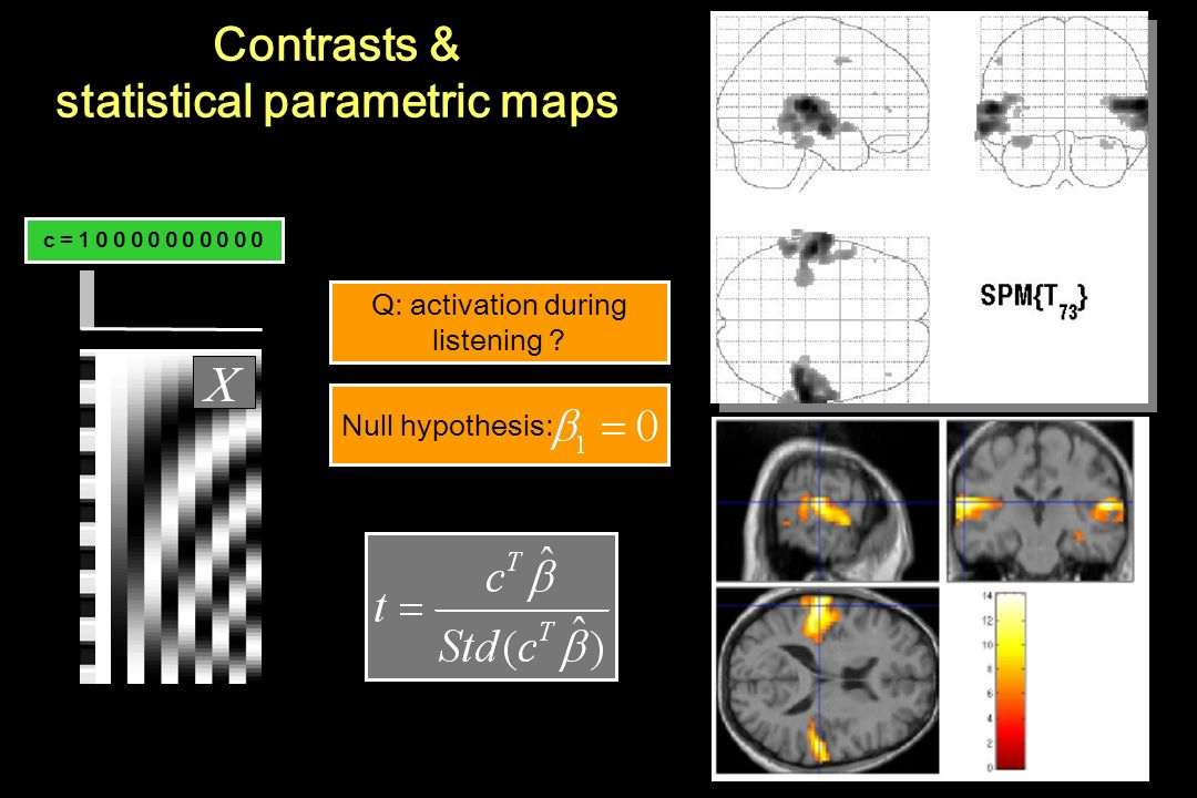 Contrasts & statistical parametric maps Q: activation during listening ? c = 1 0 0 0 0 0 0 0 0 0 0 Null hypothesis: