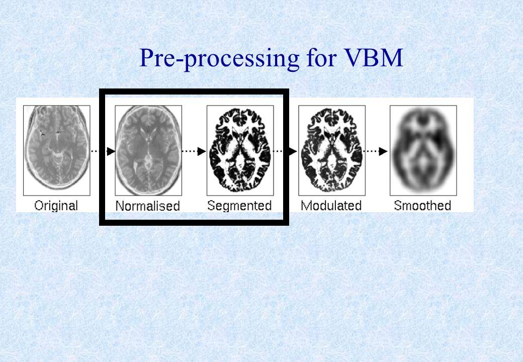 Pre-processing for VBM