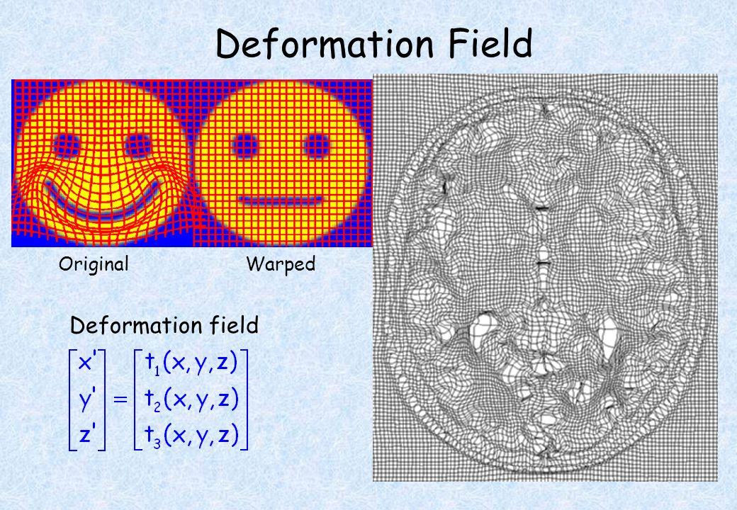 TemplateWarpedOriginal Deformation Field Deformation field
