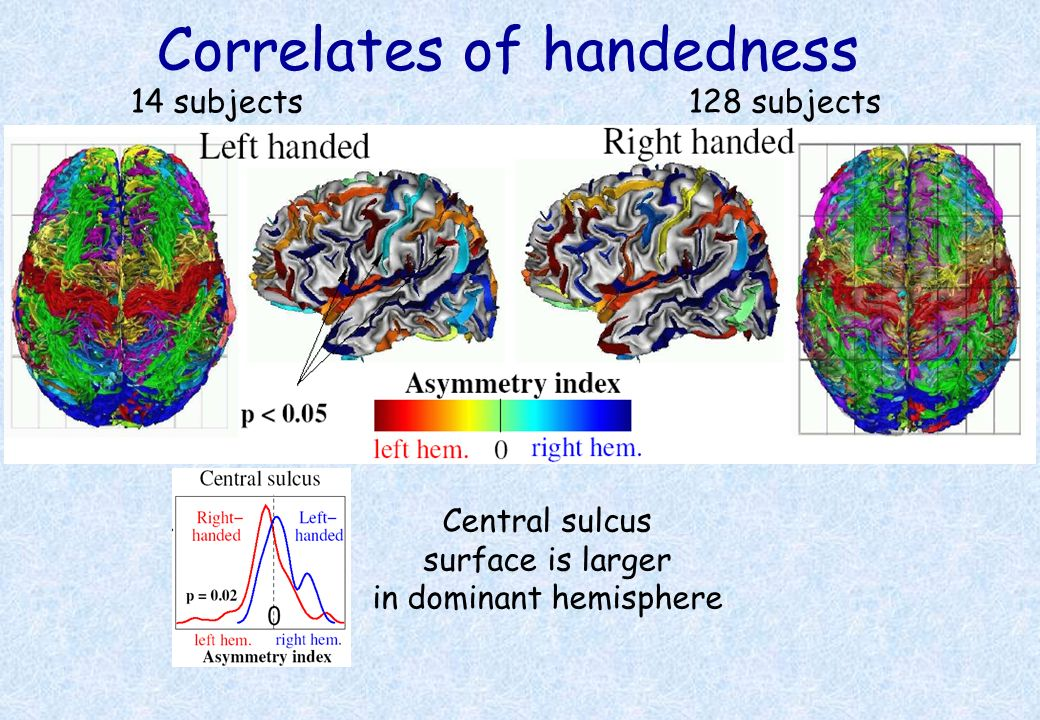 Correlates of handedness 14 subjects128 subjects Central sulcus surface is larger in dominant hemisphere