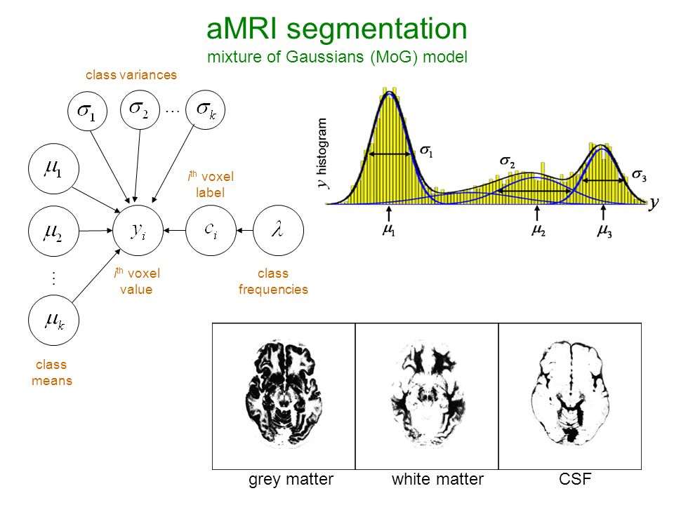 grey matterCSFwhite matter … … class variances class means i th voxel value i th voxel label class frequencies aMRI segmentation mixture of Gaussians (MoG) model