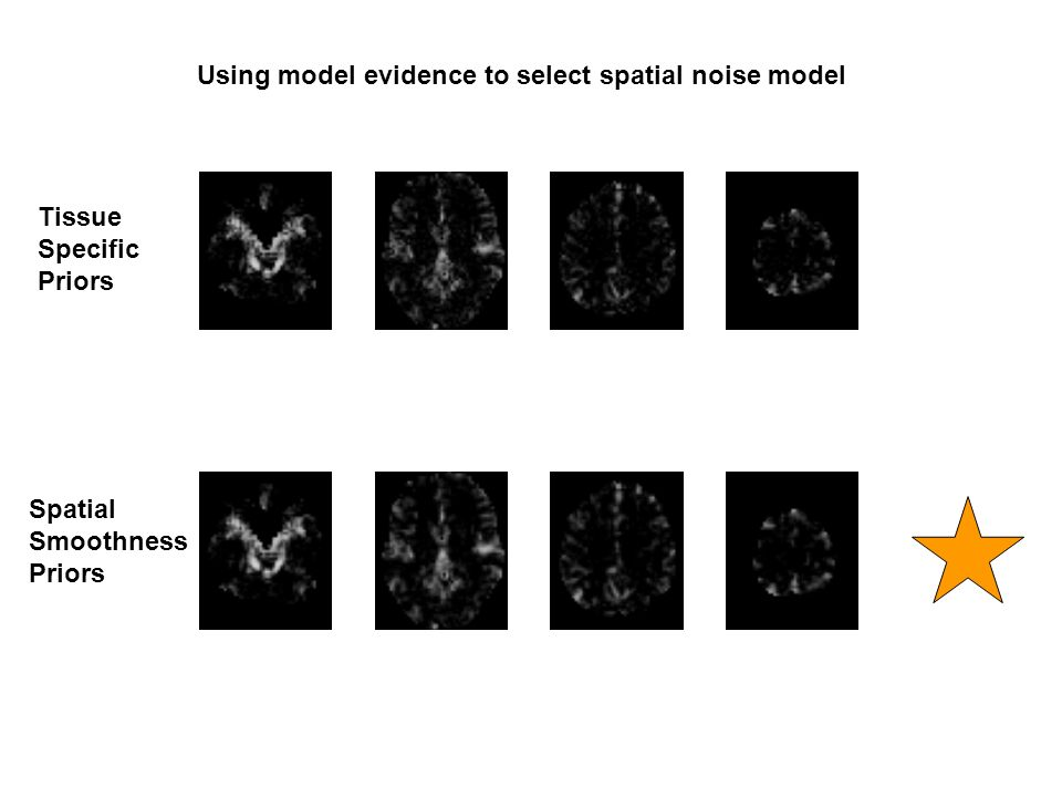 Using model evidence to select spatial noise model Tissue Specific Priors Spatial Smoothness Priors