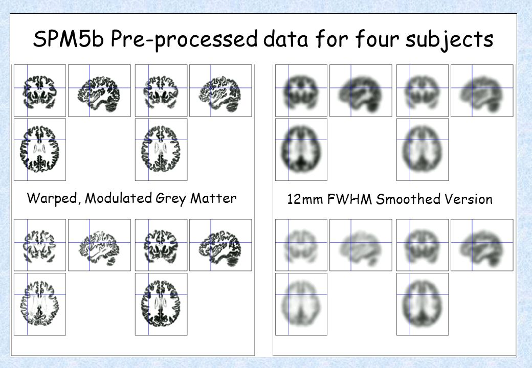 Warped, Modulated Grey Matter 12mm FWHM Smoothed Version SPM5b Pre-processed data for four subjects